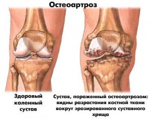 Что делать если болят суставы колен акулий жир для лечения суставов